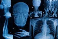 Collection du rayon X, multipart de la fève adulte de fracture d'exposition Photographie stock