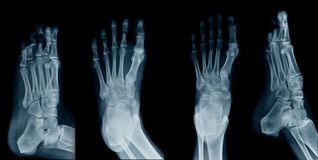 Collection foot x-ray. On black background royalty free stock photo