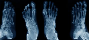 Collection foot x-ray. On black background stock images