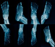 Collection foot x-ray. Multi view, high qulity foot x-ray with k-wine fixation stock images