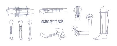 Collection of fractured bones and limbs fixed with metal implantable devices drawn with contour lines on white. Background. Bundle of osteosynthesis Stock Photos