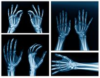 Collection hand x-ray Royalty Free Stock Photos