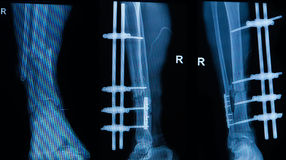Collection of human x-rays showing fracture of right leg royalty free stock image