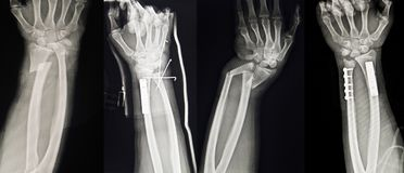 Collection of human x-rays showing Multiple hand fracture. stock photography