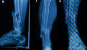 Collection of human x-rays showing fracture of right leg Stock Photography