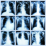 Collection of lung disease (Pulmonary tuberculosis,Pleural effusion,Bronchiectasis) Stock Photo