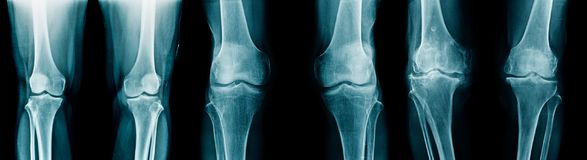 Collection OA. Knee x-ray image royalty free stock photography