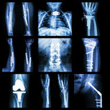 Collection of orthopedic operation Stock Photo