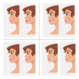 Collection plastic procedures. Vector Illustration Stock Image