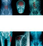 Collection x-ray image in blue tone royalty free stock images