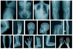 Collection x-ray image in blue tone. Human part x-ray image stock photography