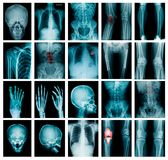 Collection x-ray image royalty free stock images