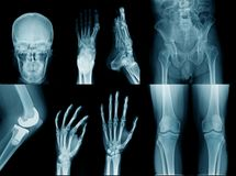 Collection x-ray image royalty free stock photos