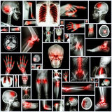 Collection X-ray multiple organ and arthritis at multiple joint (Rheumatoid,Gout) stock photos