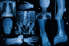 Collection of X-ray , Multiple part of adult show fracture bon stock images