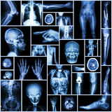Collection X-ray. Multiple part of human,orthopedic surgery and multiple disease (Fracture,Pulmonary tuberculosis,arthritis,scoliosis etc stock photography