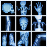 Collection x-ray part of child body (Version 2) stock photo