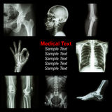 Collection of X-ray part of human stock images