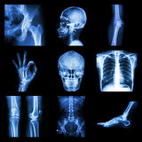 Collection X-ray part of human royalty free stock photography