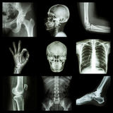 Collection X-ray part of human stock photography