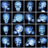 Collection x-ray skull (asian people) stock photos