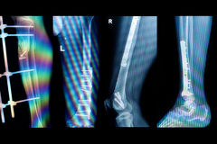Collection x-rays image of fracture  lower extremity Royalty Free Stock Image