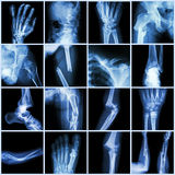 Collection X-ray  multiple bone fracture Stock Image