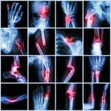 Collection X-ray multiple bone fracture Royalty Free Stock Image