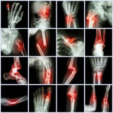 Collection X-ray multiple bone fracture Royalty Free Stock Photo