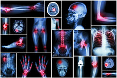 Collection x-ray multiple disease (arthritis,stroke,brain tumor,gout,rheumatoid,kidney stone,pulmonary tuberculosis,osteoarthritis Royalty Free Stock Image
