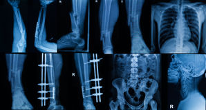 Collection of  X-ray , Multiple part of adult  show fracture bon Stock Photography