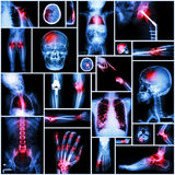 Collection of X-ray multiple part of human,Orthopedic operation and multiple disease (Shoulder dislocation,Stroke,Fracture,Gout,Rh Stock Images