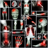 Collection of X-ray multiple part of human,Orthopedic operation and multiple disease (Shoulder dislocation,Stroke,Fracture,Gout,Rh Royalty Free Stock Image