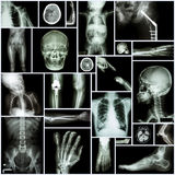 Collection X-ray Stock Images