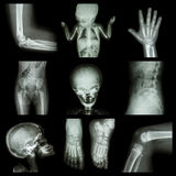Collection X-ray part of child Stock Photography