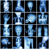 Collection X-ray part of child body Stock Images