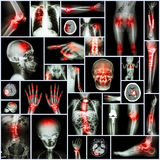 Collection X-ray part of human,Orthopedic operation,Multiple disease (Fracture,Gout,Rheumatoid arthritis,Osteoarthritis knee,Strok Royalty Free Stock Photos