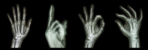 Collection X-ray symbol hands Royalty Free Stock Images