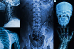 Collection x-rays image of human Royalty Free Stock Images