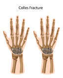 Colles fracture. Fracture of the radius and ulna, a common sport injury, eps8 Stock Photography