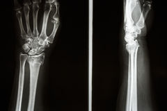 Colles' fracture royalty free stock image