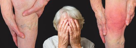 The collge about illness - varicose veins and pain in knee of old woman. The collage about old age and illness. Varicose veins on a legs of old woman and pain in royalty free stock photography