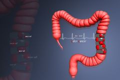 Colon cancer. 3d rendering of Colon cancer Royalty Free Stock Photos