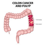 Colon cancer and colon polyps. Polyps have the potential to turn into cancer if they remain in the colon Royalty Free Stock Photos