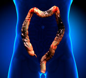 Colon Cancer / Colorectal cancer Royalty Free Stock Images