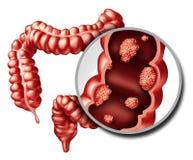 Free Colon Cancer Concept Stock Photo - 94689130