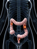 Colon cancer. 3d rendered illustration of colon cancer Royalty Free Stock Photography
