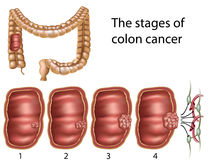 Colon cancer, eps8. Stages of colon cancer, eps8, gradient and mesh printing compatible Royalty Free Stock Images