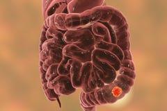Colon cancer medical concept. Colorectal cancer awareness medical concept, 3D illustration showing cancerous tumor inside large intestine royalty free illustration