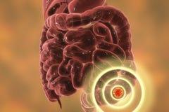 Colon cancer medical concept. Colorectal cancer awareness medical concept. Concept of cancer treatment and prevention, 3D illustration vector illustration